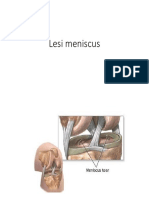Lesi Meniscus
