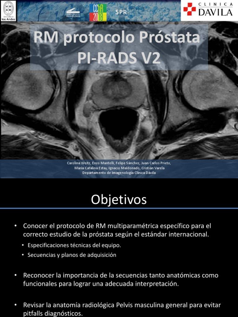 pi rads de anatomía de próstata