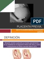 Placentaprevia 150227023524 Conversion Gate01
