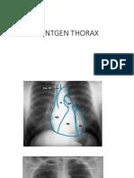 PPT Hipertensi Pd Kehamilan