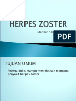 HHerpes Zoster