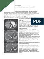 Augusto Medeiros - Trabalho de Radiologia Abdominal 2018.1