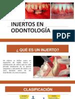 Injertos (1).pdf
