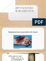 AMPUTACIONES POR SEGMENTOS (6).pptx