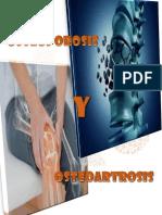 Osteoporosis y Osteoartritis