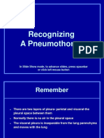 3. Recognizing Pneumothorax.ppt