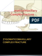 Zmc Fracture in Oral Surgery