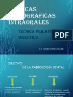 Tecnica Radiografica de La Bisectriz