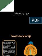 Protesis fija, corona, encrustacion
