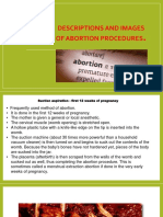 Power Point on Abortion