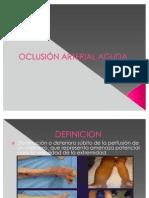 Oclusion Arterial Aguda
