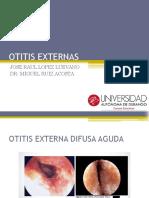 Otitis Externas