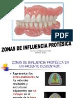 Zonas de Influencia Protésica.
