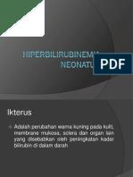 Hiperbilirubinemia Neonatus New