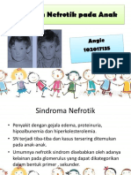 Sindrom Nefrotik Pada Anak(1)
