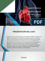 Cor Pulmonare