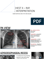 CHEST X – RAY