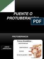 3. PROTUBERANCIA O PUENTE.pptx