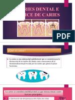 Caries Dental e Indice Cpo-d