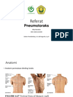 REFERAT - Pneumothorax Versi PPT