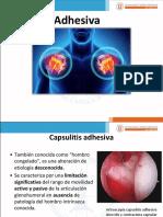 Capsulitis Adhesiva.pptx