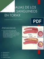 ANOMALIAS DE LOS VASOS SANGUINEOS EN TORAX [Autoguardado].pptx