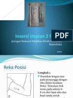 Insersi Implan 2 Plus.finalpptx.pptx
