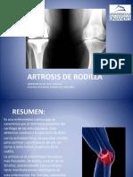 ARTROSIS DE RODILLA.pptx