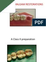 Cde-class II Amalgam Restorations-31!12!14