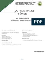 Clavo Proximal de Fémur