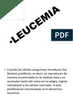 Leucemia Linfoblastica Aguda Vvv (1)