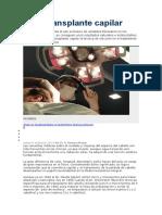 Microtransplante capilar.doc
