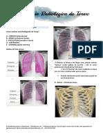 Medicina Por Imagens - Anatomia Radiológica Do Tórax