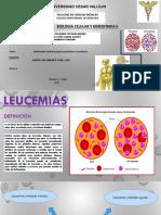 Leucemia-ppt (1)
