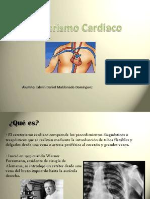como se realiza cateterismo cardiaco