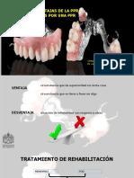 ventajas y desventajas de protesis remobible