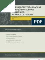 Alterações Intra-hepáticas Da Esquistossomose Mansônica