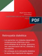 011.Compromiso Ocular Por Diabetes Mellitus