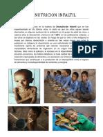 DESNUTRICION INFALTIL.docx