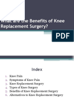 What are the Benefits of Knee Replacement Surgery?