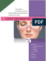 241387175-Lupus-Eritematoso-Sistemico.docx