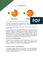 LA HIPERMETROPÍA.docx