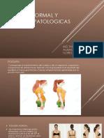 Postura Normal y Posturas Patologicas