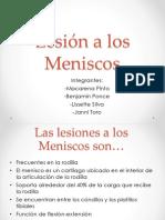 Lesión a Los MeniscosPOWER