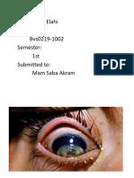 Keratomalacia eye disease