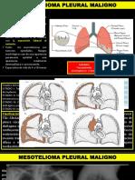 Mesotelioma pleural maligno.pptx