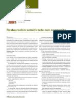 255_CASOCLINICO_RestauracionSemidirecta.pdf