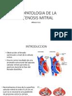 Fisiopatologia de La Estenosis Mitral