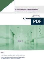 Casos Complexos de Tumores Germinativos - Caso 3 - Não Seminoma, Linfadenectomia Retroperitoneo Com Marcadores Elevados Pos HDCT TMO