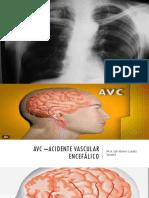 Avc –Acidente Vascular Encefálico